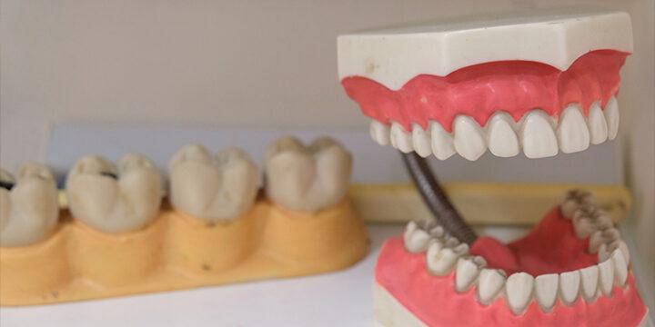 dentures needed due to soda consumption