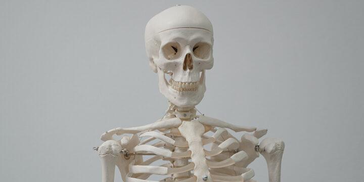 weak bones due to soda
