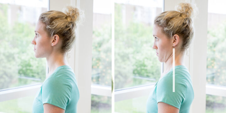 chin tucks for neck pain